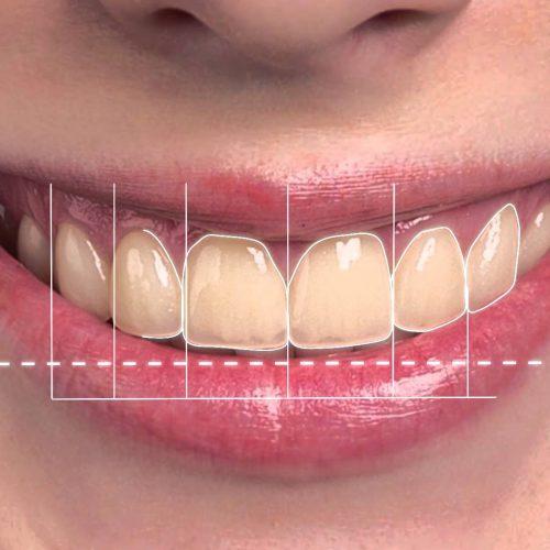 diseño digital de sonrisa como parte de la estetica dental..