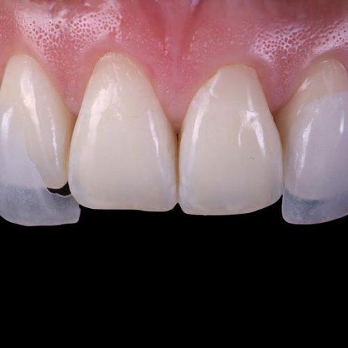 Carillas dentales en Madrid y protesis dentales