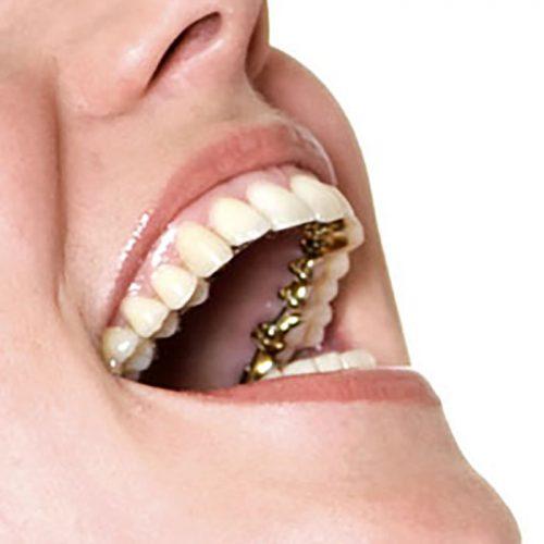 Brackets transparentes y ortodoncia en barrio Salamanca, clinica dental Medina Balda.