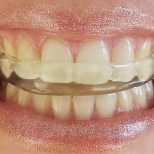 Oclusion, ATM dental y tratamiento del bruxismo en Madrid centro, clinica dental Medina Balda.
