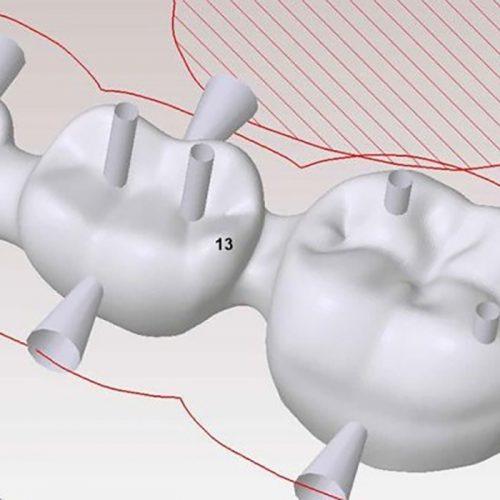 tecnologia CAD/CAM y materiales de ultima generacion.