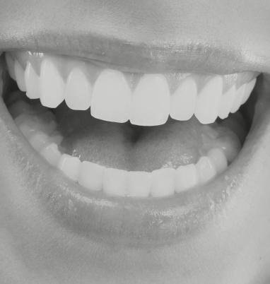 tratamiento periodontal en madrid